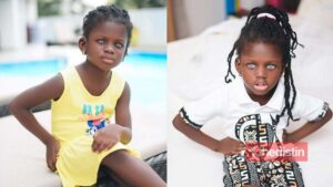 Meet Rebecca Dumeh: Ghanaian Child With Blue Eye Modelling To Raise Funds For Surgery And Create Awareness For Her Condition (Photos)